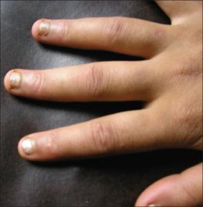 MCTD hovne fingre