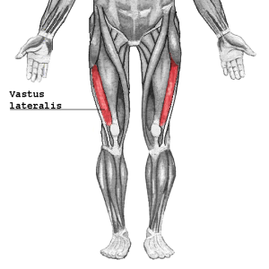 Myositt Vastus_lateralis