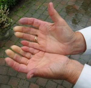 Raynaud's phenotype scleroderma
