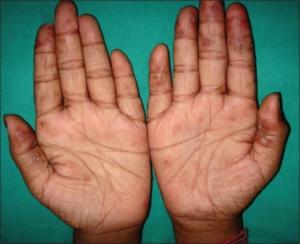 lupus utslett bilder