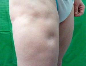 lupus symptomer bilder