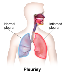 Pleuritis can occur at SLE