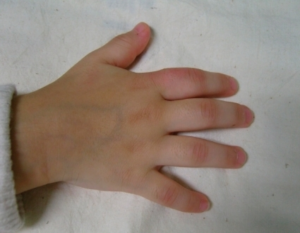 Polyarticular childhood arthritis