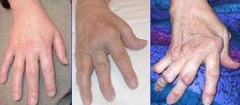 reumatisme symptomer