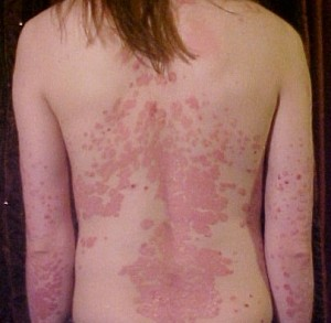 Psoriasis_on_back1