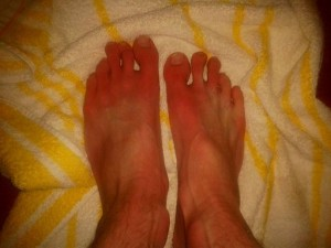 Erythromelalgia-symptoms