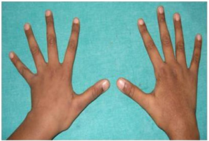 Marfan syndrome, hands