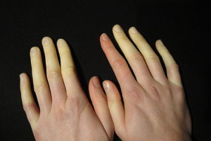 Raynaud's is Likfingre