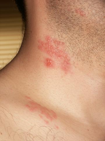 herpes i kroppen
