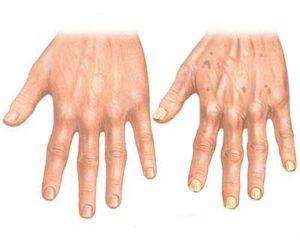 revmatiske lidelser symptomer