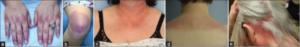 Dermatomyositt