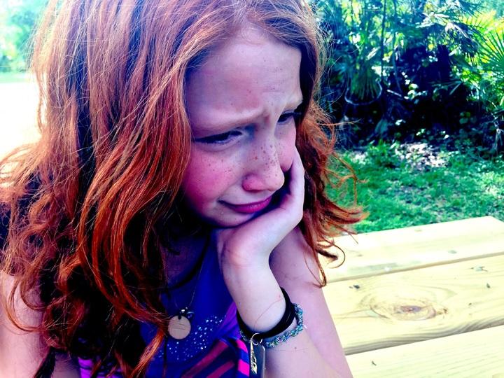 Young women 🌱 lupus in 17 Symptoms