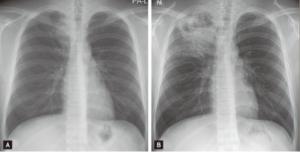Mykobakterier infeksjon i lunge
