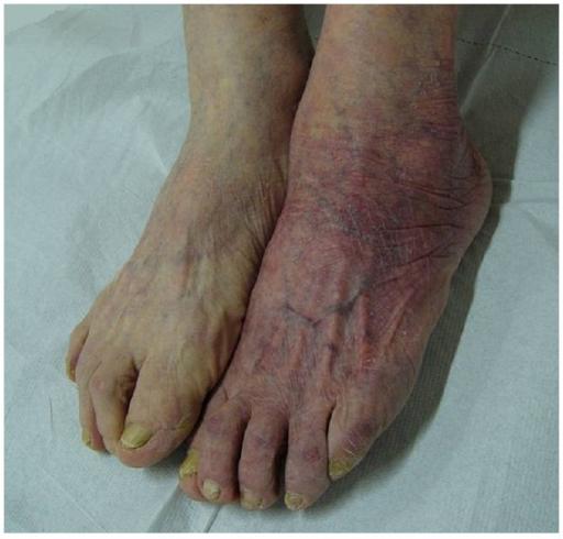 kronisk borrelia symptom
